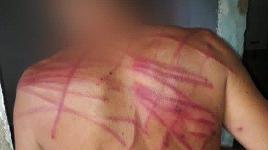 Morador do Chapadão, Zona Norte do Rio, afirma que PMs agrediram e até chicotearam irmão dentro de casa
